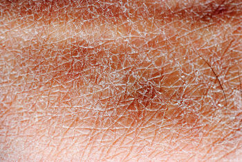 dried sweat on skin