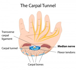 Carpal Tunnel Syndrome Health Facts
