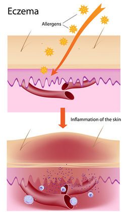 why you get eczema