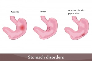 Peptic Ulcer Health Facts