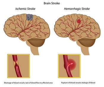 Stroke diagram.jpg