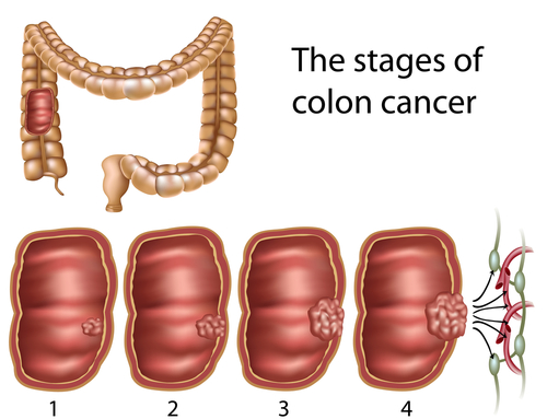 Colorectal Cancer Health Facts